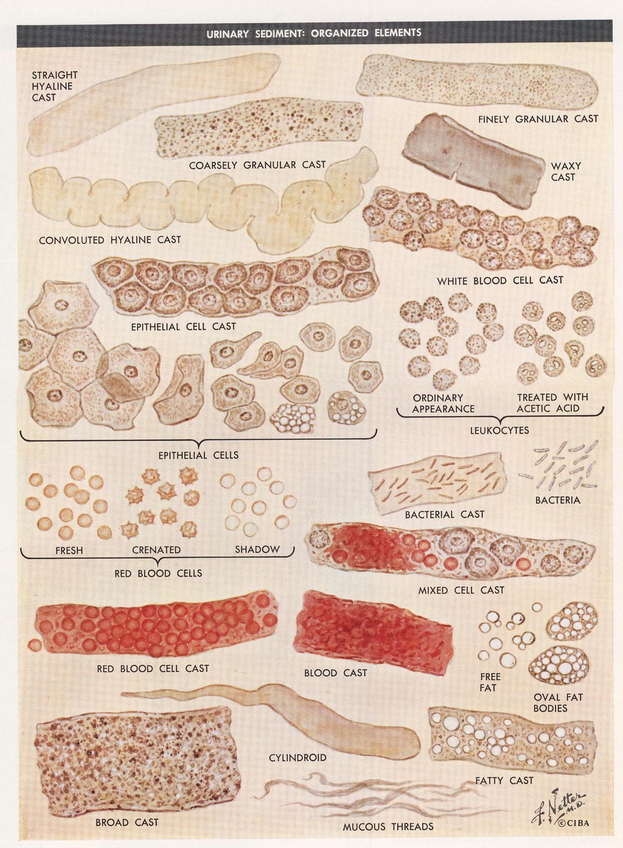 Urine Sediment | Renal